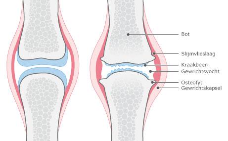artrose-behandeling-arnhem
